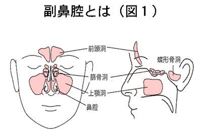 副 鼻腔 炎 と は